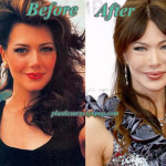 Hunter Tylo Plastic Surgery Before After Pictures