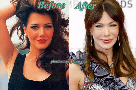HunterTyloPlasticSurgery Hunter Tylo Plastic Surgery Before After Pictures