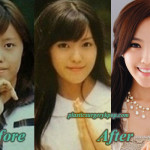 Hyomin T-ara Plastic Surgery Nose Job Eyelid Surgery Before After Pics