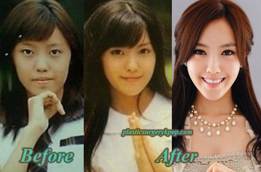 HyominTaraPlasticSurgery Hyomin T ara Plastic Surgery Nose Job Eyelid Surgery Before After Pics