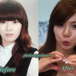 HyunA Plastic Surgery Before and After Pictures