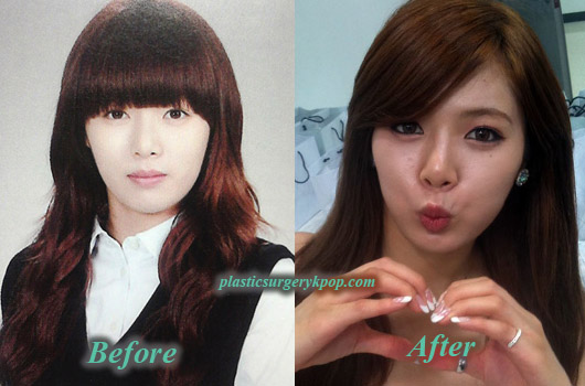 HyunAPlasticSurgery HyunA Plastic Surgery Before and After Pictures