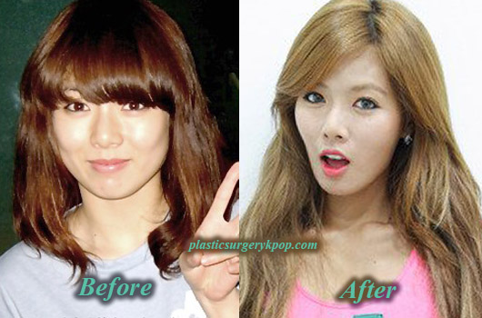 HyunAPlasticSurgeryBeforeAfter HyunA Plastic Surgery Before and After Pictures