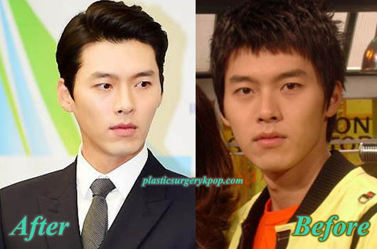 HyunBinNoseJobJawlineReduction Hyun Bin Plastic Surgery Before and After Pictures