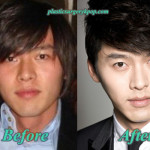 Hyun Bin Plastic Surgery Before and After Pictures