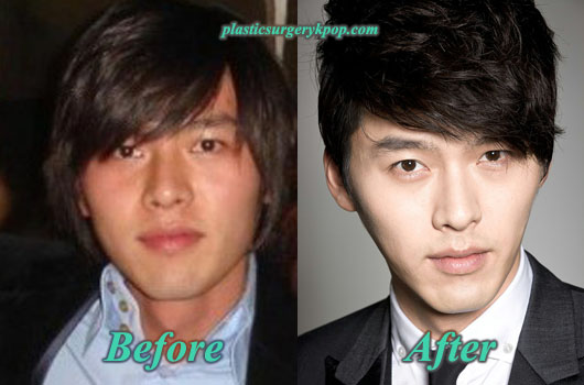 HyunBinPlasticSurgery Hyun Bin Plastic Surgery Before and After Pictures