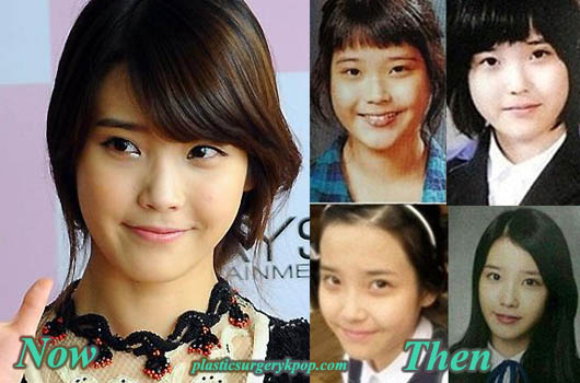 IuNosePlasticSurgery Iu Plastic Surgery Before After Pictures of Nose Job