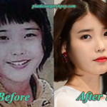 Iu Plastic Surgery Before After Pictures of Nose Job