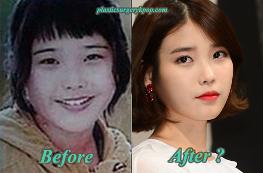 IuPlasticSurgery Iu Plastic Surgery Before After Pictures of Nose Job