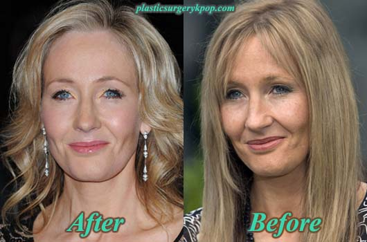 JKRowlingPlasticSurgery JK Rowling Plastic Surgery Before After Facelift and Botox Pictures