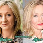 JK Rowling Plastic Surgery Before After Facelift and Botox Pictures