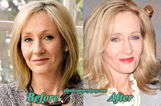 JKRowlingPlasticSurgeryPicture JK Rowling Plastic Surgery Before After Facelift and Botox Pictures