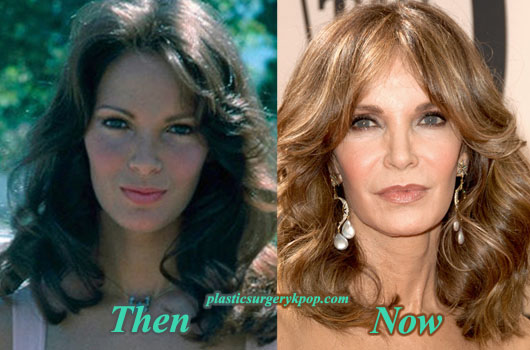 JaclynSmithFacelift Jaclyn Smith Plastic Surgery Before and After Pictures