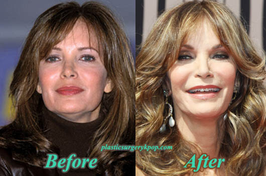 JaclynSmithPlasticSurgery Jaclyn Smith Plastic Surgery Before and After Pictures