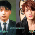 Did Kim Jaejoong Have Plastic Surgery? Before After Pictures