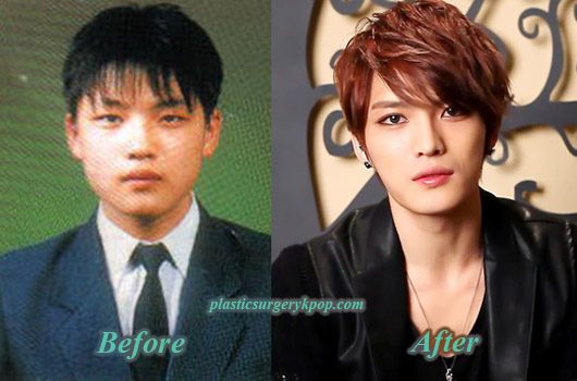 JaejoongPlasticSurgery Did Kim Jaejoong Have Plastic Surgery? Before After Pictures
