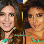 Jamie-Lynn Sigler Plastic Surgery Before and After Pictures