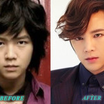 JangGeunSukPlasticSurgery 150x150 Jang Geun Suk Plastic Surgery Before After Nose Job