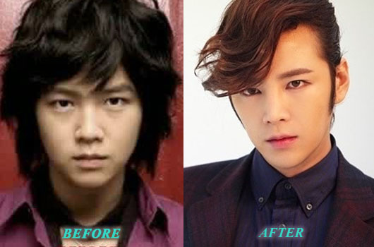 JangGeunSukPlasticSurgery Jang Geun Suk Plastic Surgery Before After Nose Job