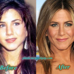 Jennifer Aniston Plastic Surgery Nose Job Before After