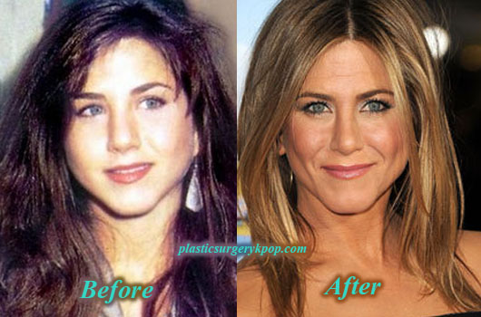 JenniferAnistonPlasticSurgeryNoseJob Jennifer Aniston Plastic Surgery Nose Job Before After