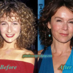 Jennifer Grey Nose Job Before and After Picture