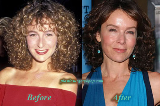 JenniferGreyNoseJob Jennifer Grey Nose Job Before and After Picture
