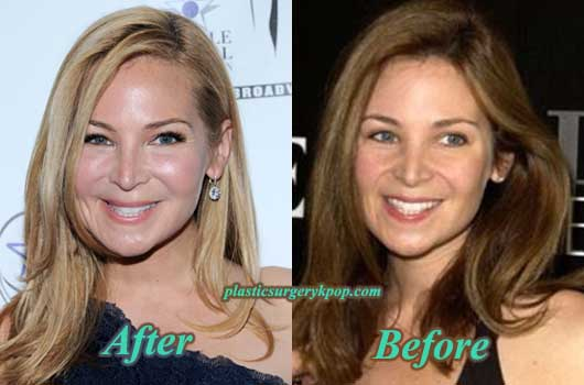 JenniferWestfeldtCheekImplantBotoxPicture Jennifer Westfeldt Plastic Surgery Before and After