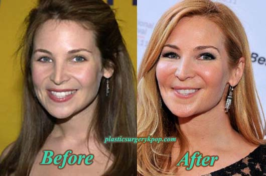 JenniferWestfeldtPlasticSurgery Jennifer Westfeldt Plastic Surgery Before and After