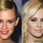 Jenny McCarthy Plastic Surgery Before After Pictures