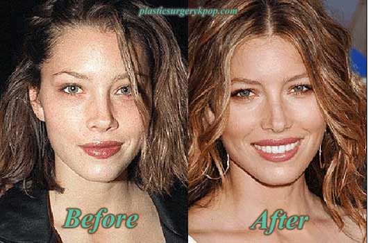 JessicaBielNoseJob Jessica Biel Plastic Surgery of Nose Job Before and After Pictures