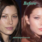 Jessica Biel Plastic Surgery of Nose Job Before and After Pictures