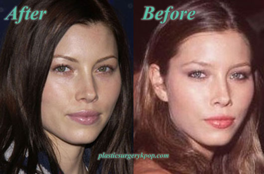 JessicaBielPlasticSurgery Jessica Biel Plastic Surgery of Nose Job Before and After Pictures