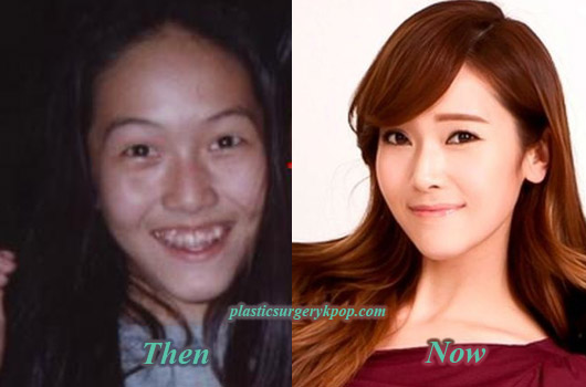 JessicaPlasticSurgery Jessica SNSD/Girls Generation Plastic Surgery Before After Pictures