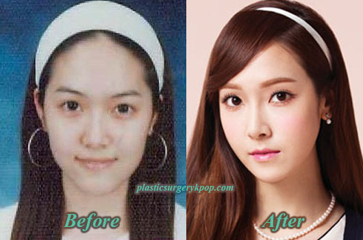 JessicaPlasticSurgeryNoseJob Jessica SNSD/Girls Generation Plastic Surgery Before After Pictures