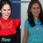 Jinkee Pacquiao Plastic Surgery Before and After Pictures