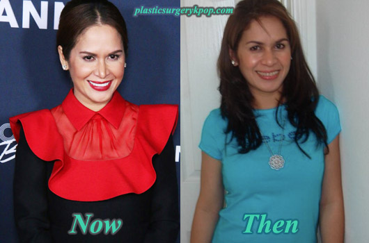 JinkeePacquiaoPlasticSurgery Jinkee Pacquiao Plastic Surgery Before and After Pictures