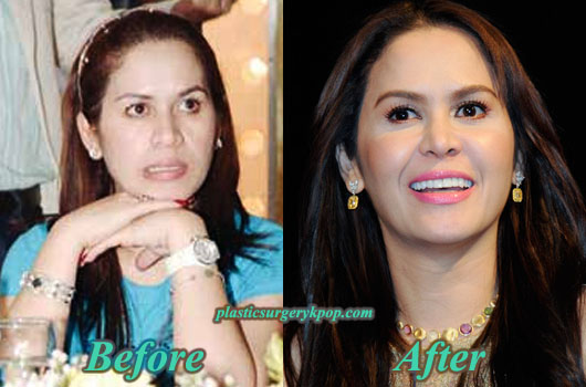 JinkeePacquiaoPlasticSurgeryPicture Jinkee Pacquiao Plastic Surgery Before and After Pictures