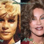 Catwoman Plastic Surgery Jocelyn Wildenstein Before After Pictures