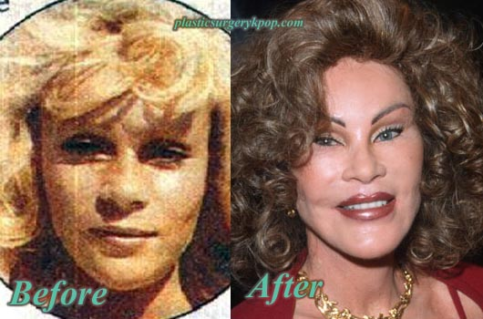 JocelynWildensteinPlasticSurgery Catwoman Plastic Surgery Jocelyn Wildenstein Before After Pictures