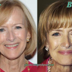 Judy Woodruff Facelift Plastic Surgery Before After Picture