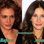 Julia Roberts Plastic Surgery Before and After Pictures
