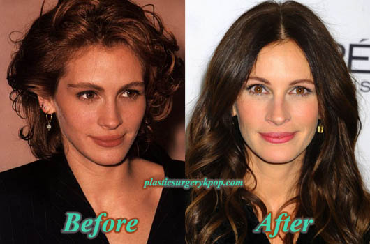 JuliaRobertsPlasticSurgery Julia Roberts Plastic Surgery Before and After Pictures