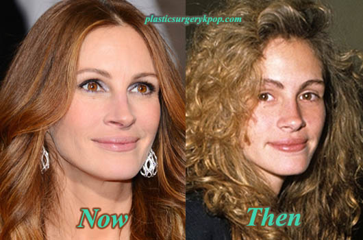 JuliaRobertsPlasticSurgeryBeforeandAfter Julia Roberts Plastic Surgery Before and After Pictures