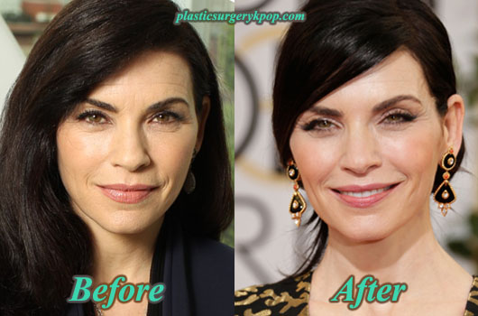 JuliannaMarguliesFaceliftandBotox Julianna Margulies Plastic Surgery Before After Pictures