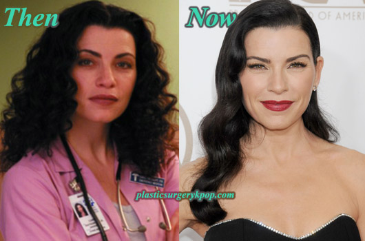 JuliannaMarguliesPlasticSurgery Julianna Margulies Plastic Surgery Before After Pictures
