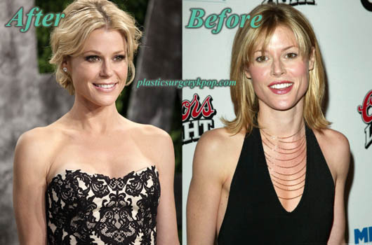 JulieBowenPlasticSurgery Julie Bowen Plastic Surgery Before and After Pictures
