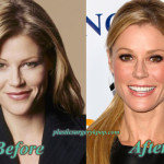 Julie Bowen Plastic Surgery Before and After Pictures
