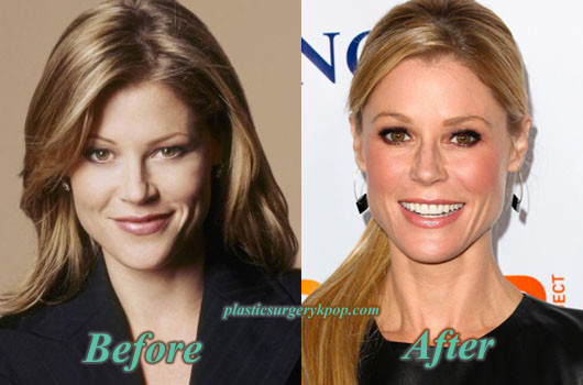 JulieBowenPlasticSurgeryNoseJob Julie Bowen Plastic Surgery Before and After Pictures