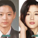 Jun Ji Hyun Plastic Surgery Before and After